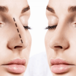 What Are The After Effects Of Rhinoplasty?
